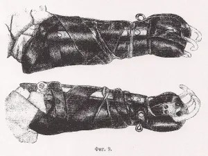 Worker's prothesis circa 1920s