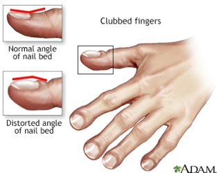 Clubbing of the fingers or toes Information | Mount Sinai - New York