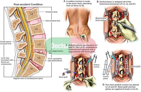 L5 S1 Degenerative Discs Lumbar Spine