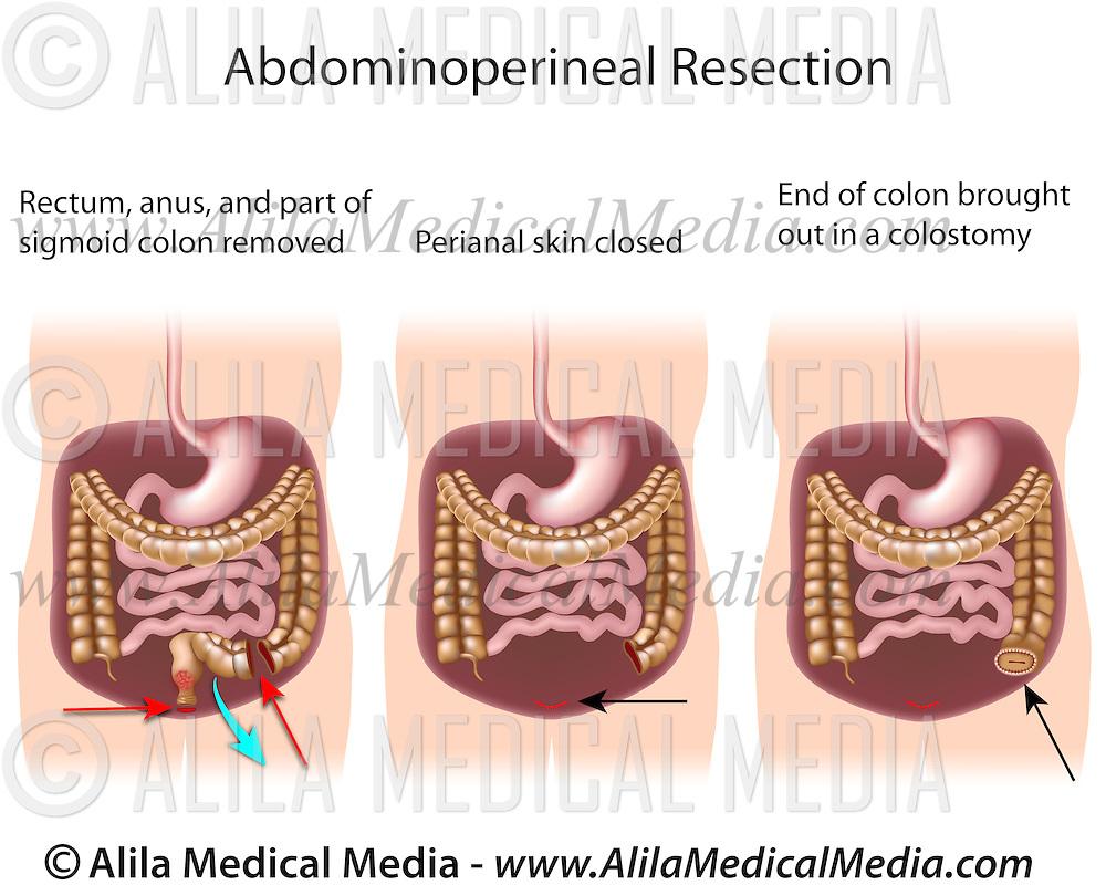 medium resolution of alila medical images