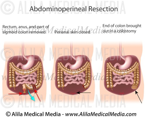 small resolution of alila medical images