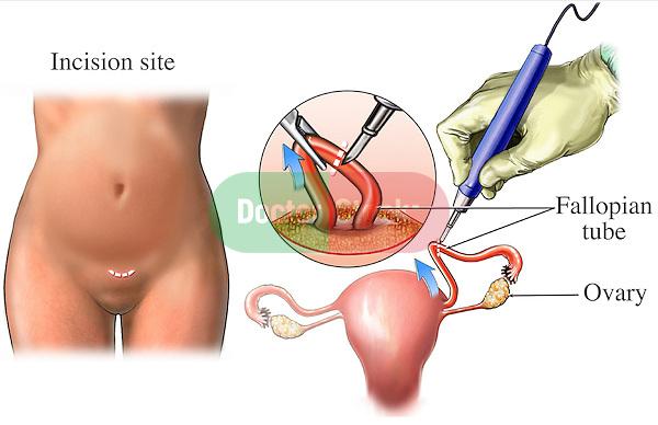 Open Tubal Ligation   Doctor Stock