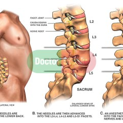 Lumbar Nerve Root Diagram Wiring Trailer South Africa Facet Joint Block | Doctor Stock