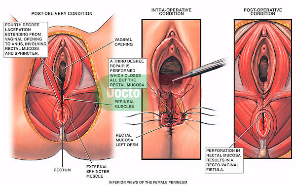 Ob Gyn Surgery Procedures