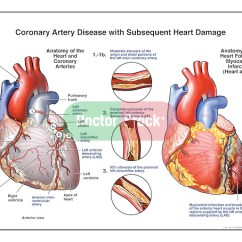 Anterior Heart Diagram Unlabeled 3 Wire Alternator Wiring Coronary Artery Disease With Subsequent Damage | Doctor Stock