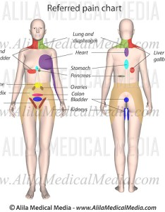 Areas on body where pain from internal organs are perceived labeled drawing also organ referred chart alila medical images rh alilamedicalimagesotoshelter