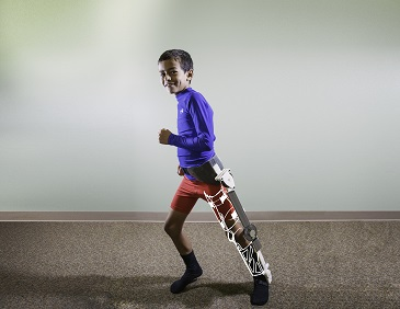 Helping Injured Children Walk One Step At A Time