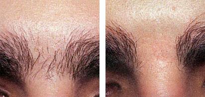 Laser Hair Removal · Laser Advantage