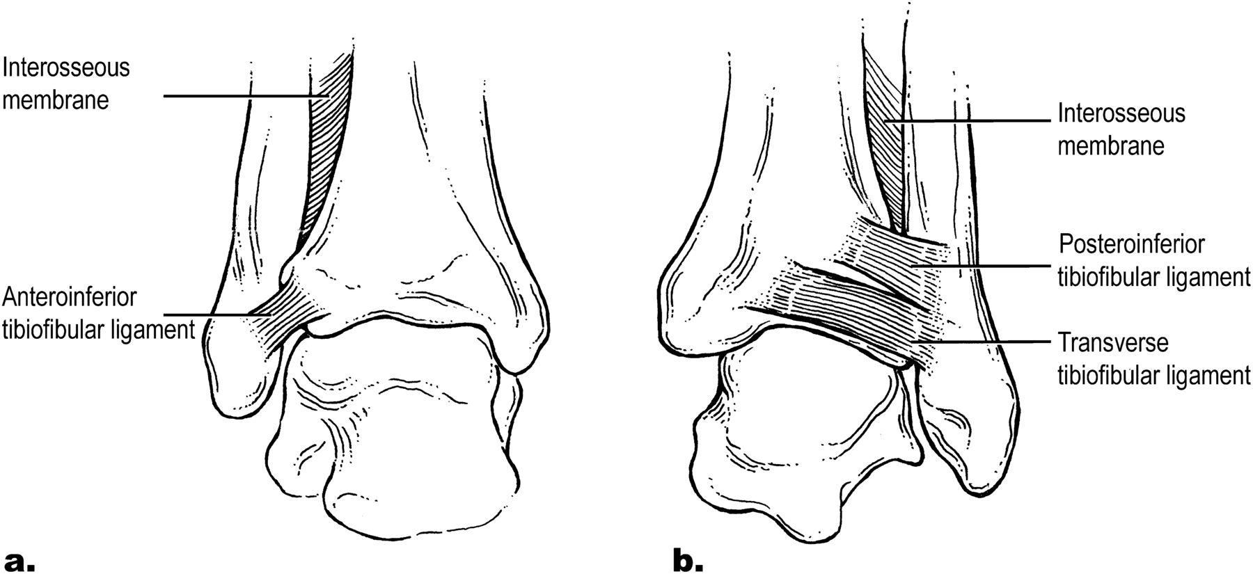 High Ankle Sprain Archives