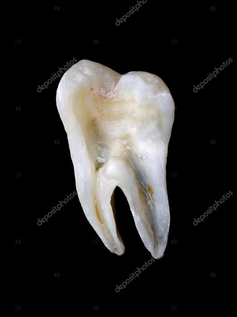 Lngsschnitt Aus Einer Menschlichen Zahn Stockfoto