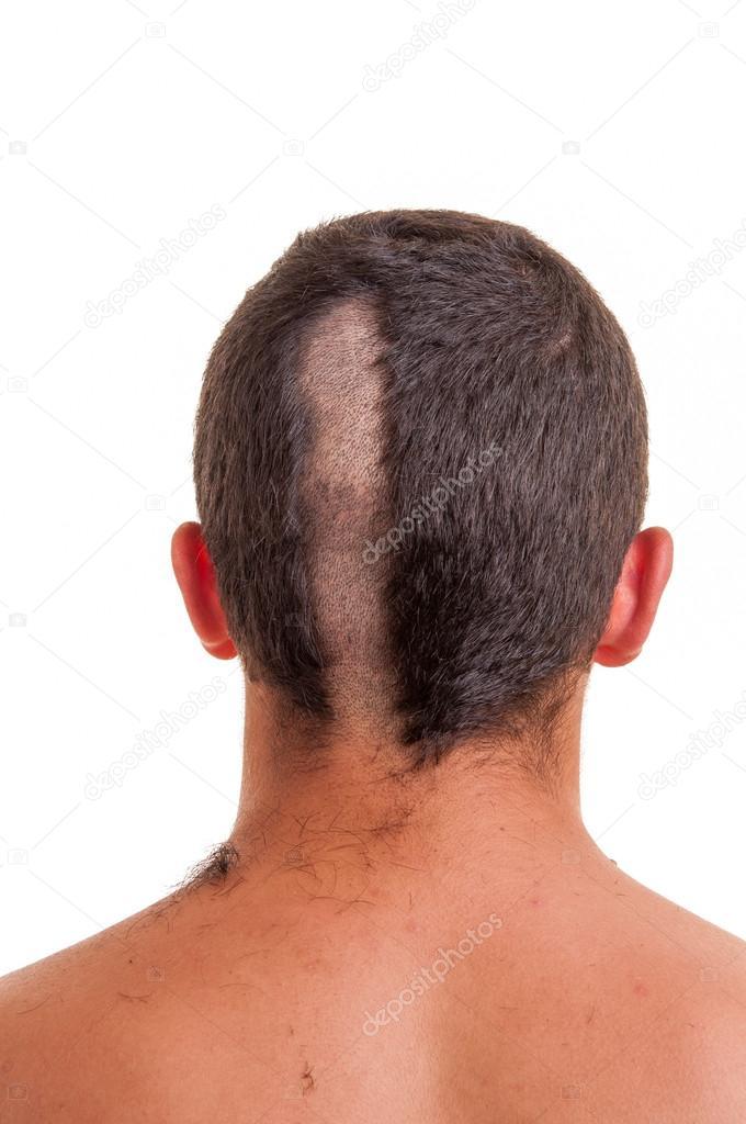 Nahaufnahme Des Mann Hinterkopf Während Ihm Die Haare Schneiden Ist
