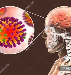 digital illustration of complication of flu infection such as encephalitis and close up of virus particle stock photos [ 1800 x 1200 Pixel ]