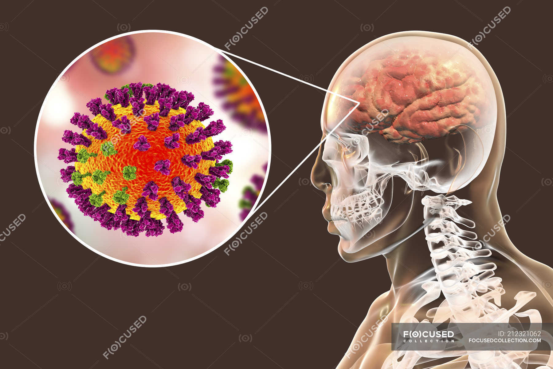 hight resolution of digital illustration of complication of flu infection such as encephalitis and close up of virus particle stock photos