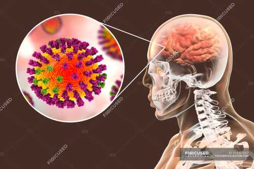 small resolution of digital illustration of complication of flu infection such as encephalitis and close up of virus particle stock photos