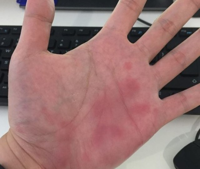 I Have Been Experiencing Spontaneous Bruising In The Palm Of My Hands And Occasionally On The Soles Of My Feet At Least Once A Year Since I Was 15