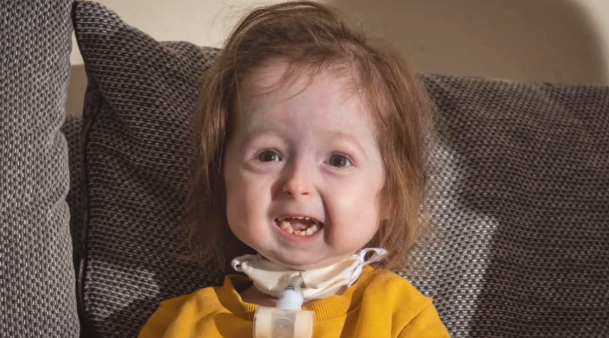 Progeria Syndrome: UK Girl Is the Only Person in the World to Have ...