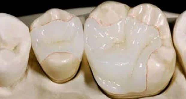 Ceramic  the natural tooth mimicking dental filling material  TheHealthSitecom