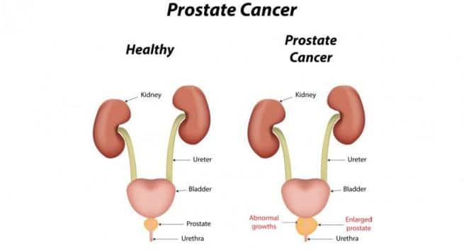 Image result for prostate cancer treatment