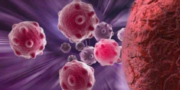 Cancer - know how to bring down your risk | TheHealthSite.com