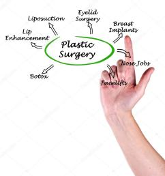 diagram of plastic surgery photo by vaeenma [ 1017 x 1023 Pixel ]