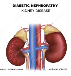 diabetic nephropathy kidney disease caused by diabetes vector by megija [ 1023 x 940 Pixel ]