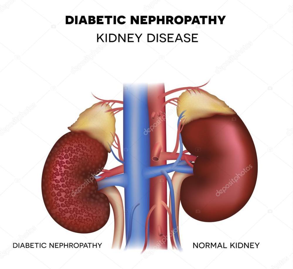 medium resolution of diabetic nephropathy kidney disease caused by diabetes vector by megija