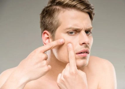 how to get rid of pimples home remedies