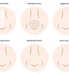 diagram of skin pores normal pores sagging pores open pores blackhead pores whitehead pores acne scar pores vector by mug5 [ 1024 x 780 Pixel ]