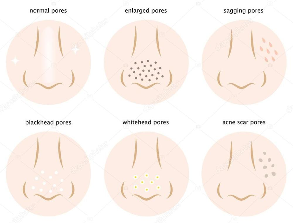 medium resolution of diagram of skin pores normal pores sagging pores open pores blackhead pores whitehead pores acne scar pores vector by mug5