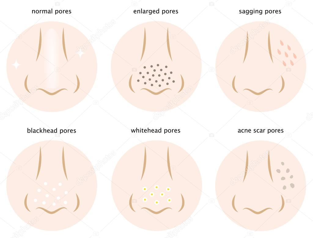 hight resolution of diagram of skin pores normal pores sagging pores open pores blackhead pores whitehead pores acne scar pores vector by mug5