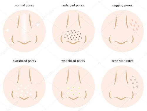 small resolution of diagram of skin pores normal pores sagging pores open pores blackhead pores whitehead pores acne scar pores vector by mug5
