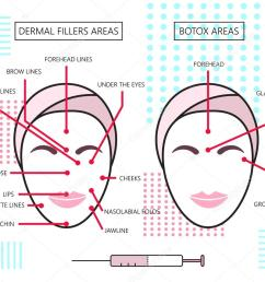 infograthic poster about dermal fillers and botox ares injections cosmetology beauty vector [ 1024 x 853 Pixel ]