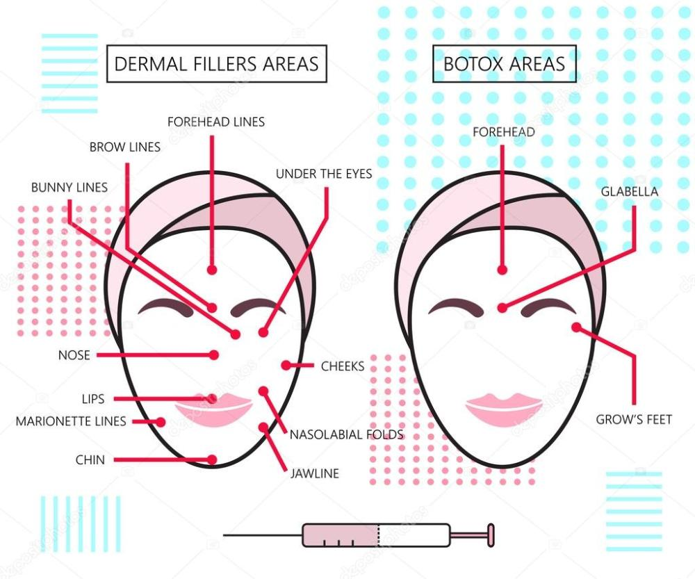 medium resolution of infograthic poster about dermal fillers and botox ares injections cosmetology beauty vector