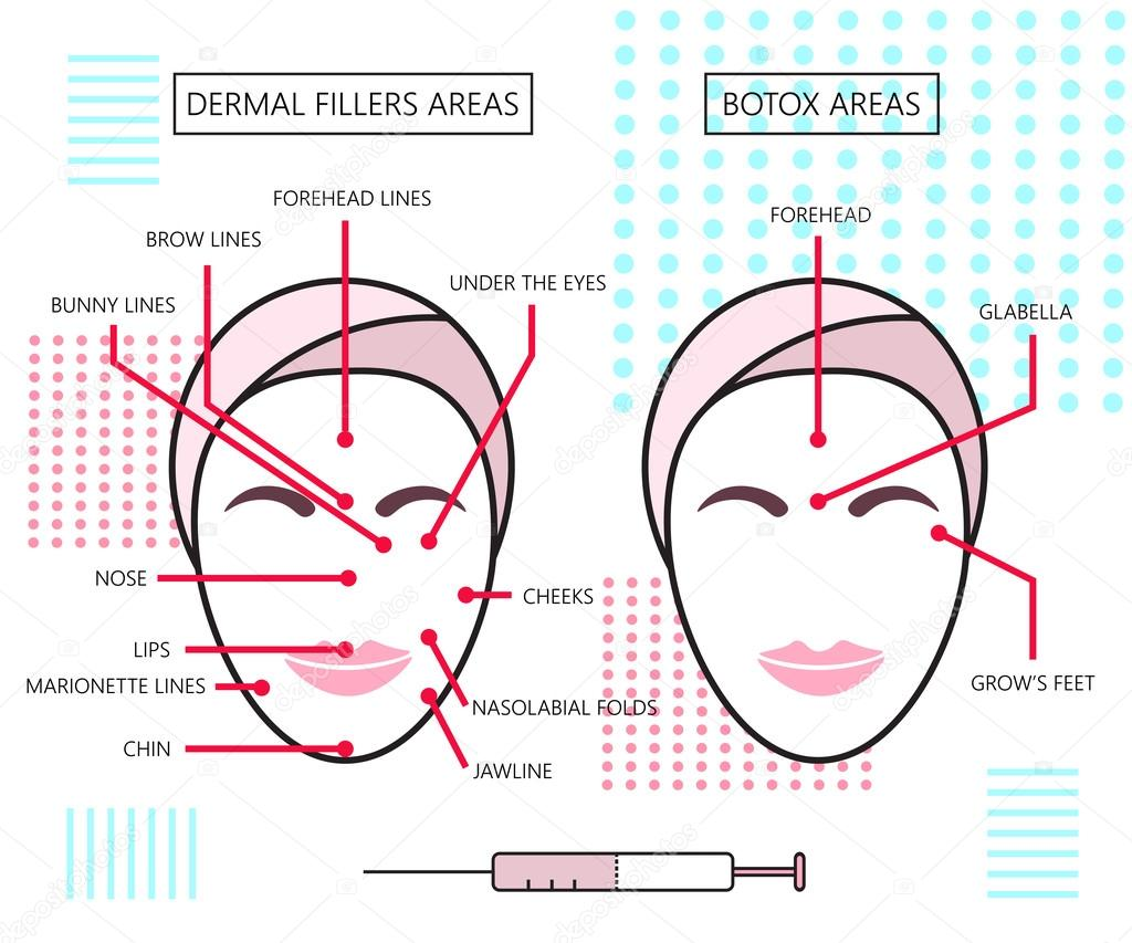hight resolution of infograthic poster about dermal fillers and botox ares injections cosmetology beauty vector