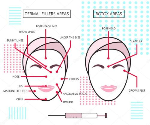 small resolution of infograthic poster about dermal fillers and botox ares injections cosmetology beauty vector