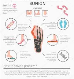 foot deformation as medical desease infographic causes of bunion vector illustration vector by  [ 1407 x 1700 Pixel ]