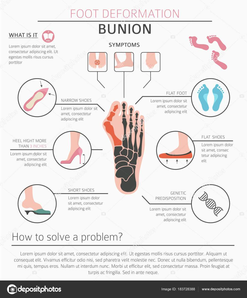 medium resolution of foot deformation as medical desease infographic causes of bunion vector illustration vector by