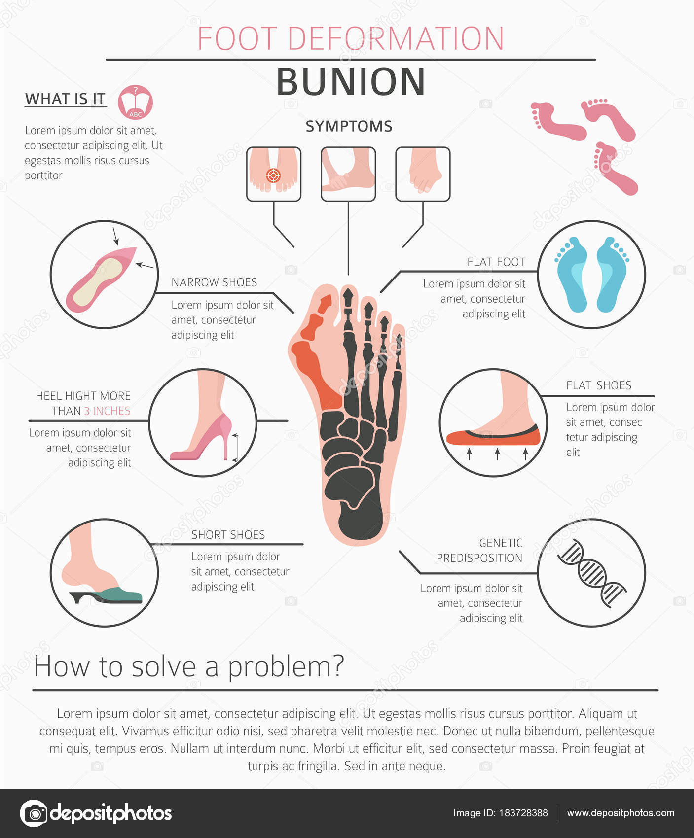 hight resolution of foot deformation as medical desease infographic causes of bunion vector illustration vector by