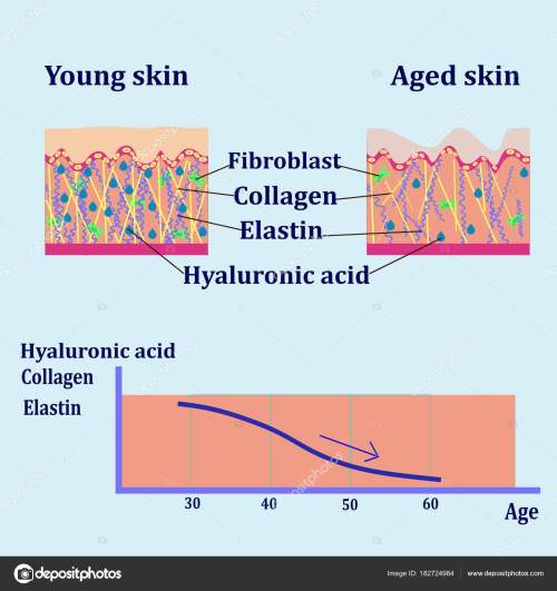 small resolution of vector diagram with schemes of two types of skin for cosmetological illustrations stock vector