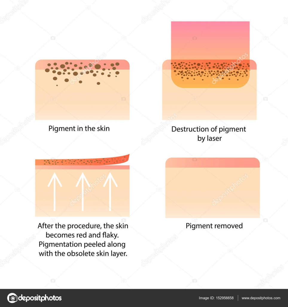 medium resolution of procedure for removing tattoo and freckles old spots birthmark dark spot pigment infographics vector by liliiakyrylenko