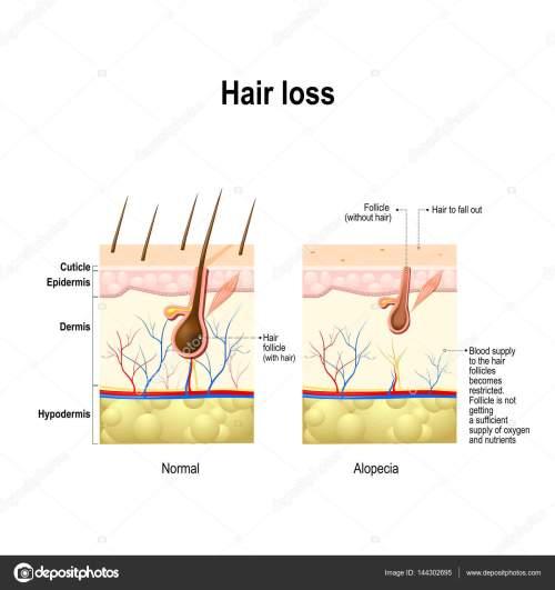 small resolution of alopecia skin diagram wiring diagram for you alopecia skin diagram