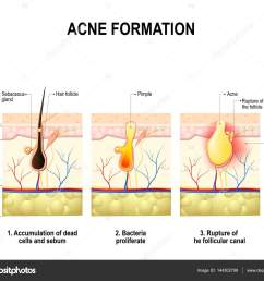 three stages of the acne formation in the human skin stock vector [ 1024 x 854 Pixel ]