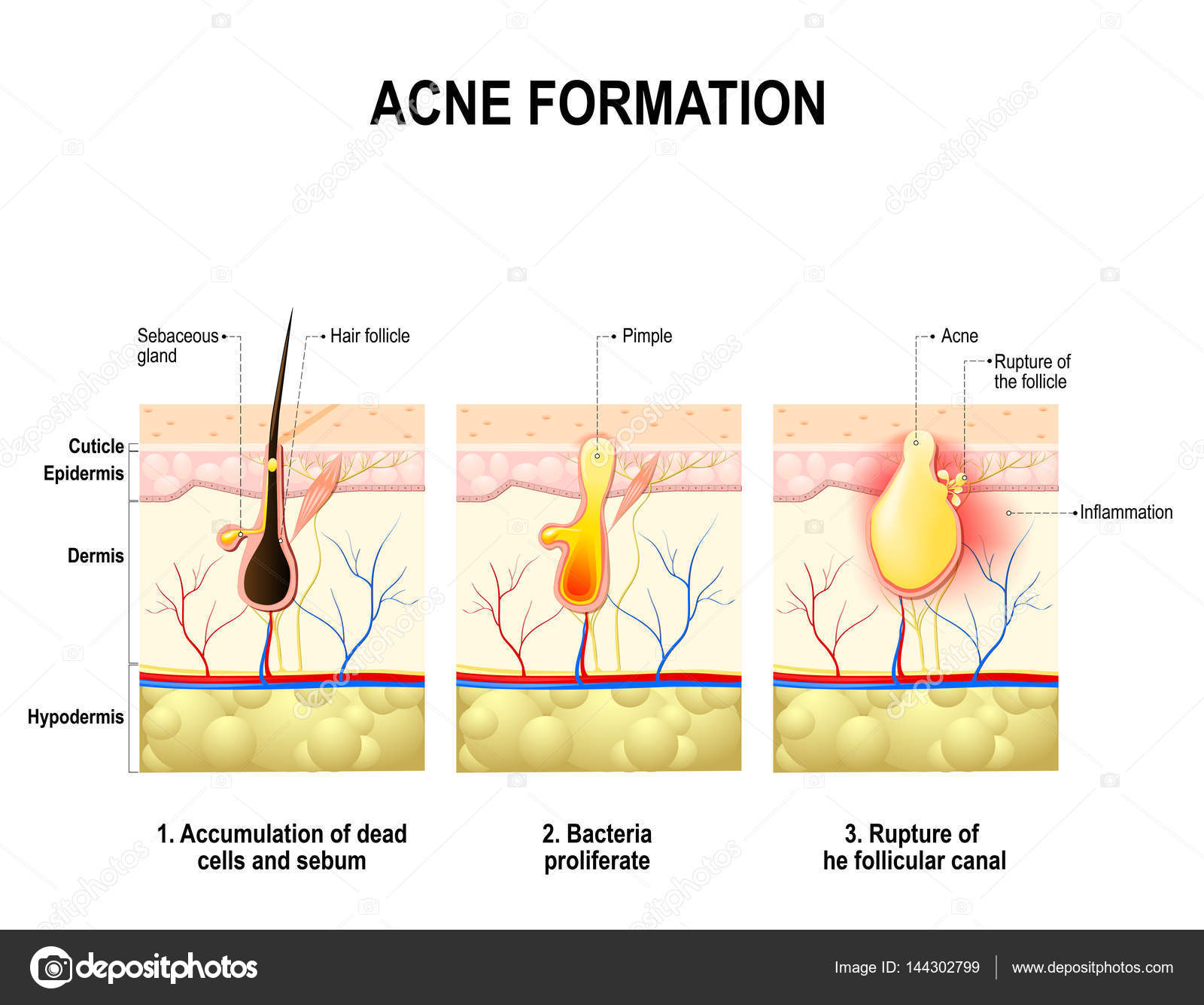 hight resolution of three stages of the acne formation in the human skin stock vector