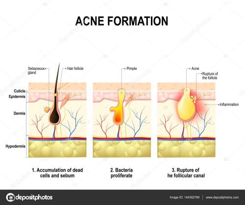 small resolution of three stages of the acne formation in the human skin stock vector