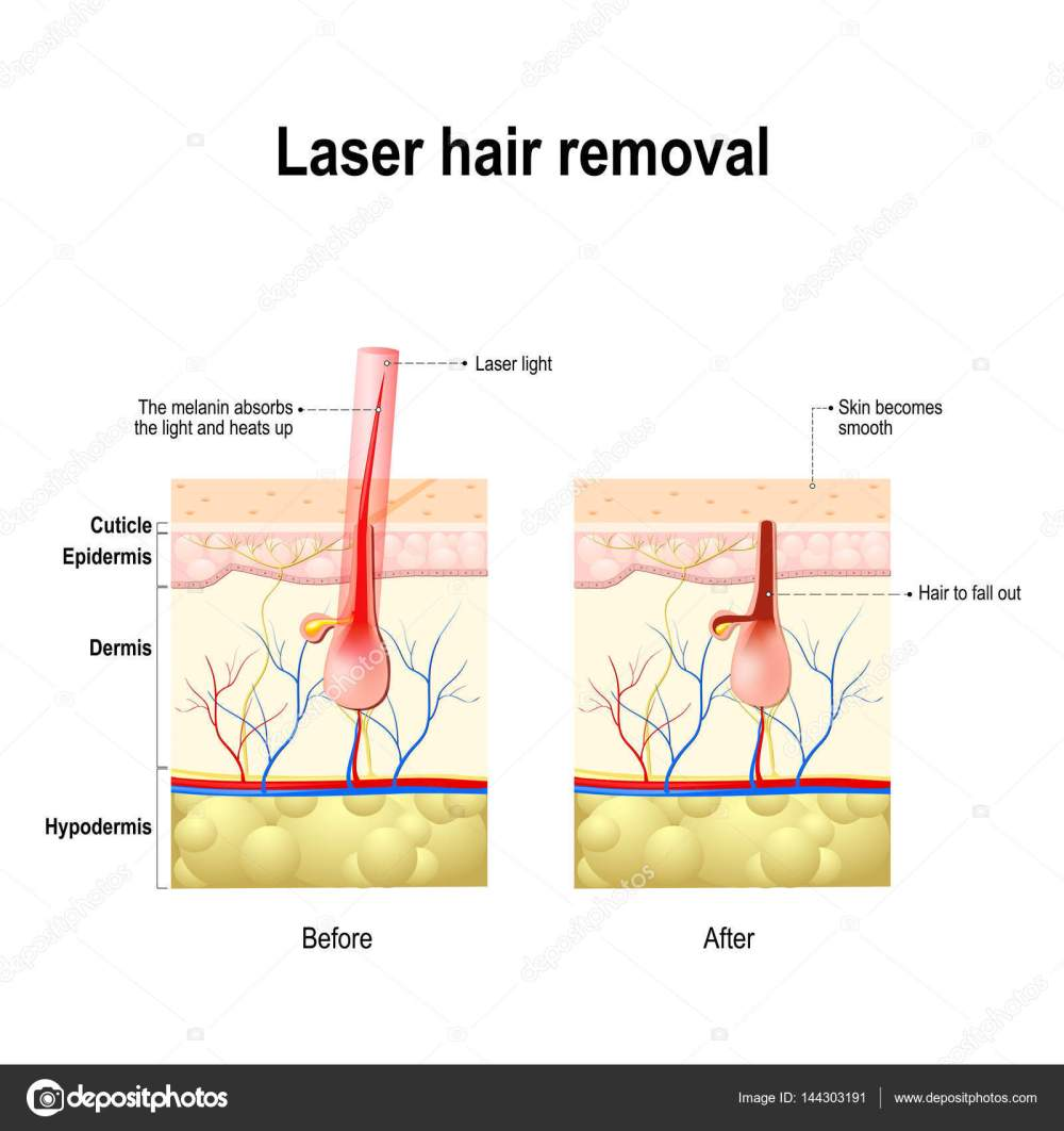 medium resolution of laser hair removal laser produce a beam of light that is absorbed by the pigment in hair this causes damage to the hair follicle without hurting the skin