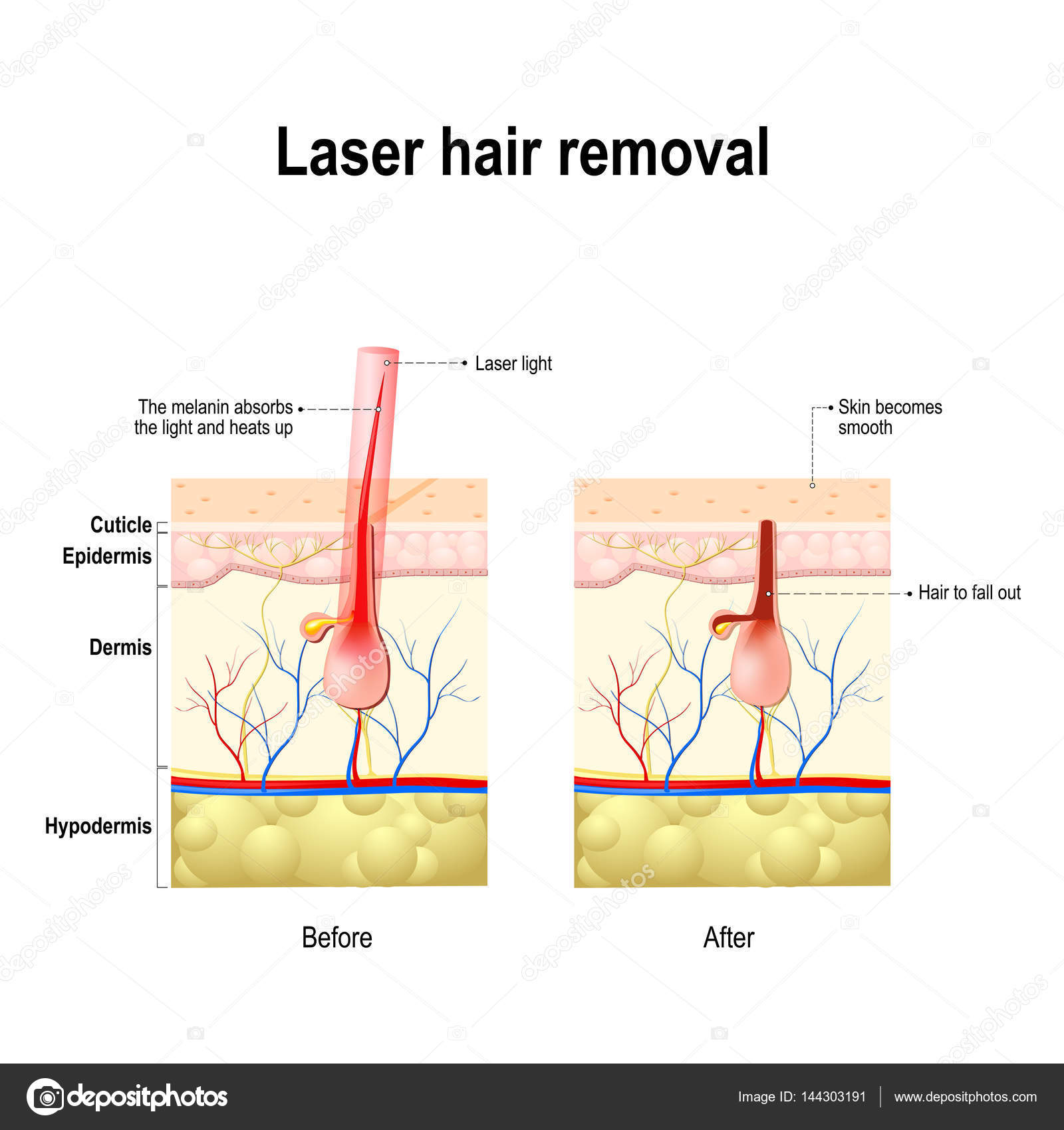 hight resolution of laser hair removal laser produce a beam of light that is absorbed by the pigment in hair this causes damage to the hair follicle without hurting the skin