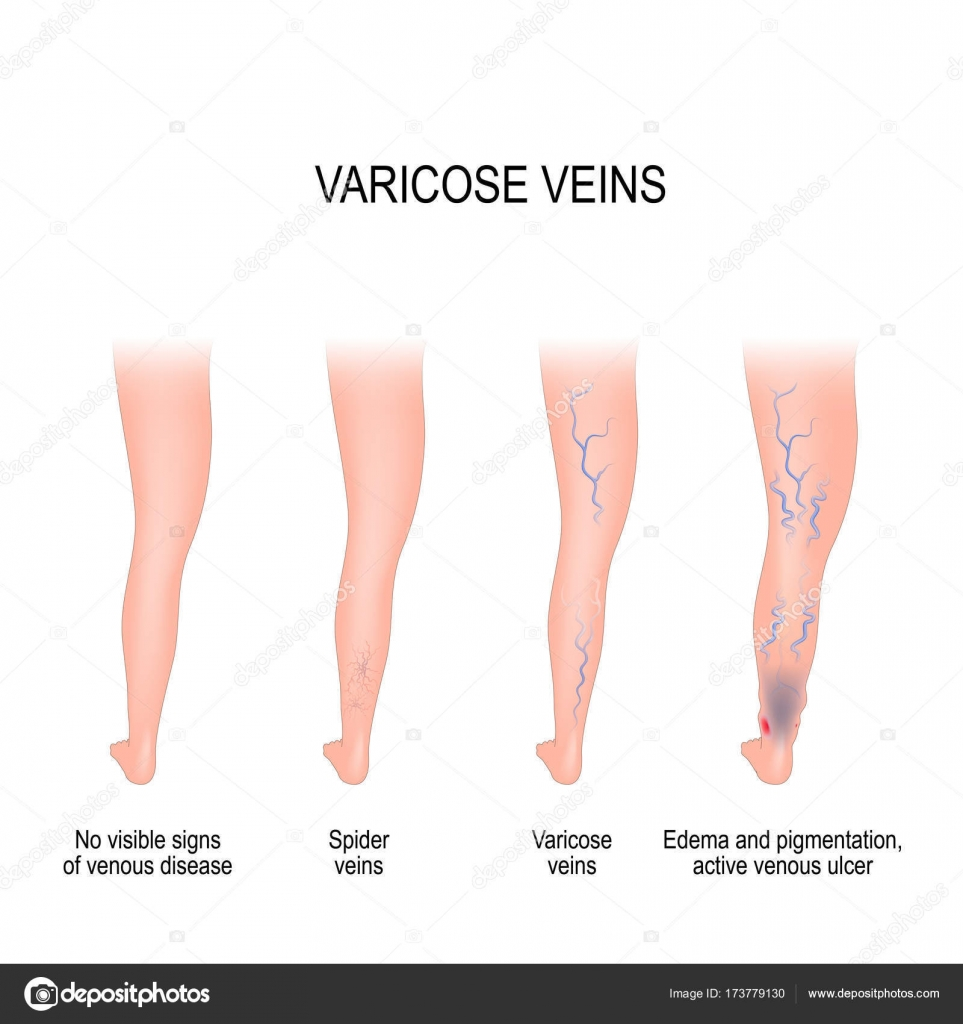 hight resolution of stages of varicose veins stock vector