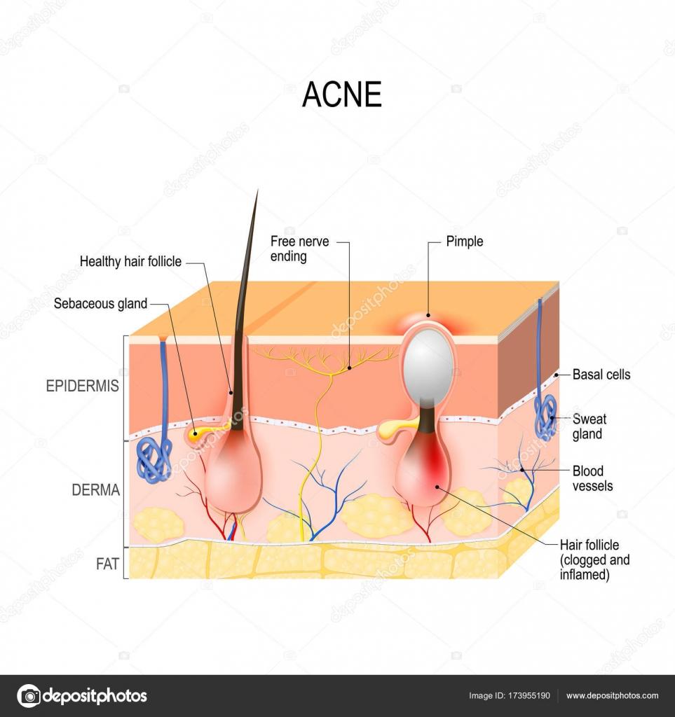 medium resolution of depositphotos 173955190 stock illustration acne vulgaris pimple jpg