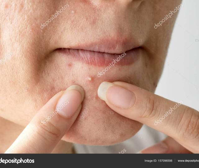 Acne Pus Close Up Photo Of Acne Prone Skin Woman Squeezing Her Pimple Removing Pimple From Her Face Photo By Artfully