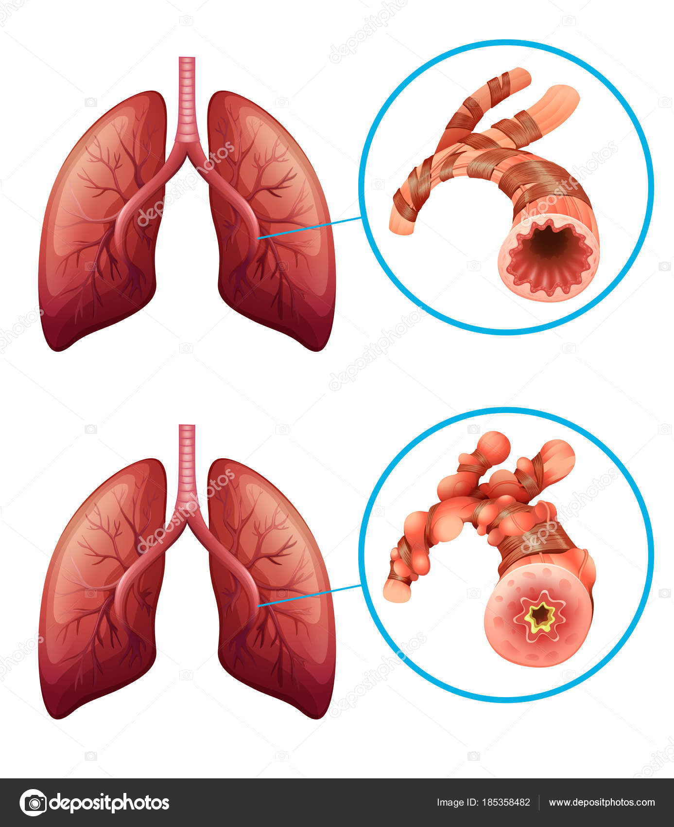 hight resolution of diagram showing lungs with disease illustration vector by blueringmedia